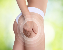 MesoCellulite